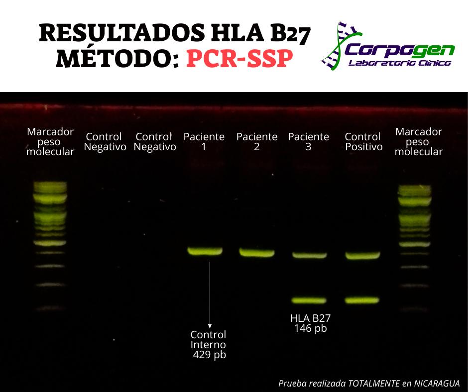 resultados hla b27